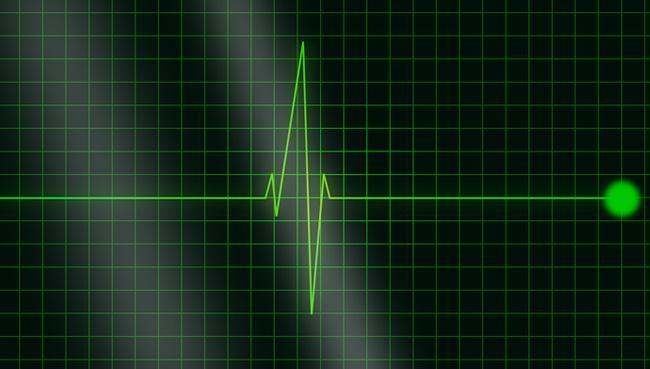 Elettrocardiogramma a domicilio
