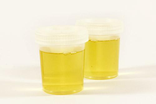Auto-analisi delle urine - farmacie orbassano rivalta